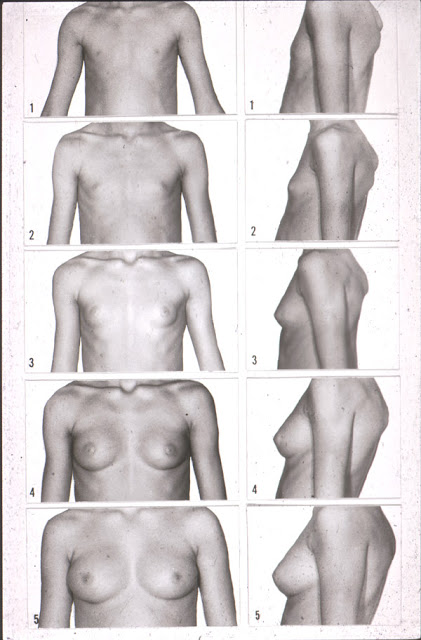 stages of female breast development photo